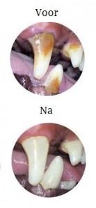 zelf tandsteen verwijderen bij honden